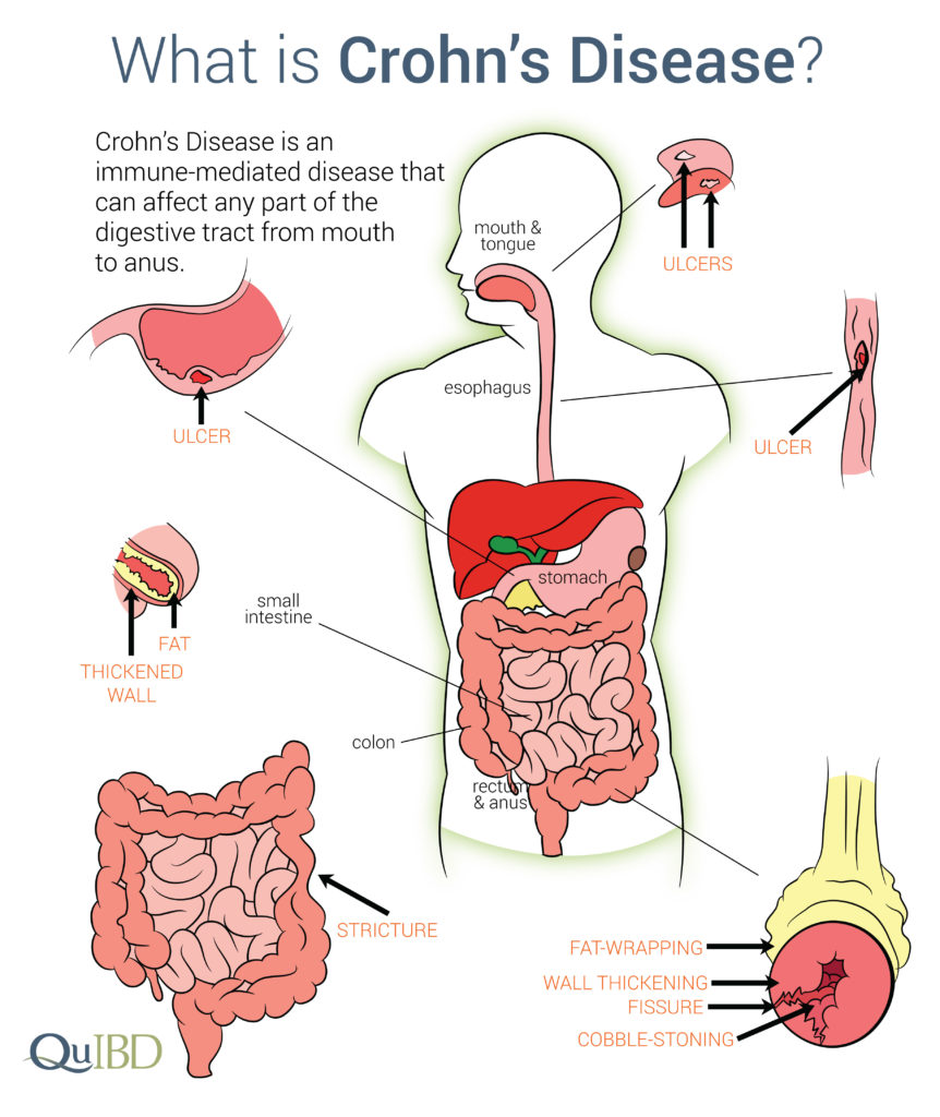 Organs affected by Crohn's disease