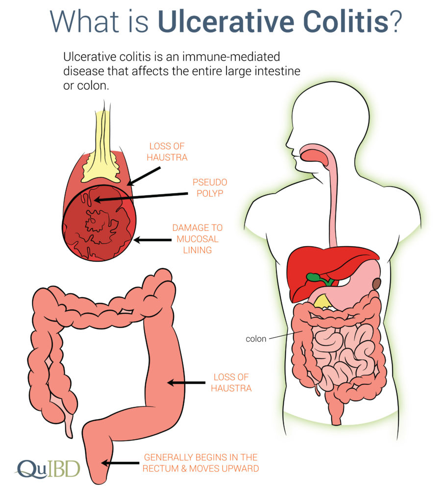 Ulcerative colitis symptoms